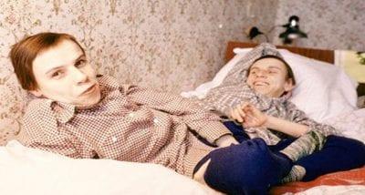 Un sin fin de dolor y tristeza para las siamesas torturadas por científicos de Stalin