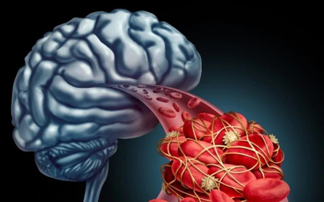 Un ataque de ACV mata 2 millones de neuronas por minuto