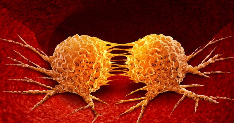 Tratamiento contra leucemia podría detener metástasis en el cerebro
