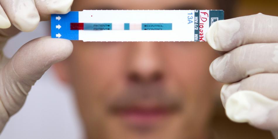 VIH/Sida   Pruebas, síntomas y tratamiento disponible en Perú   Nacho Vidal   Tecnología y ciencias   Ciencias